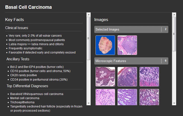 Adenocarcinoma, Lung (Search Screenshot)
